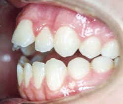 logopedie-tandheelkunde