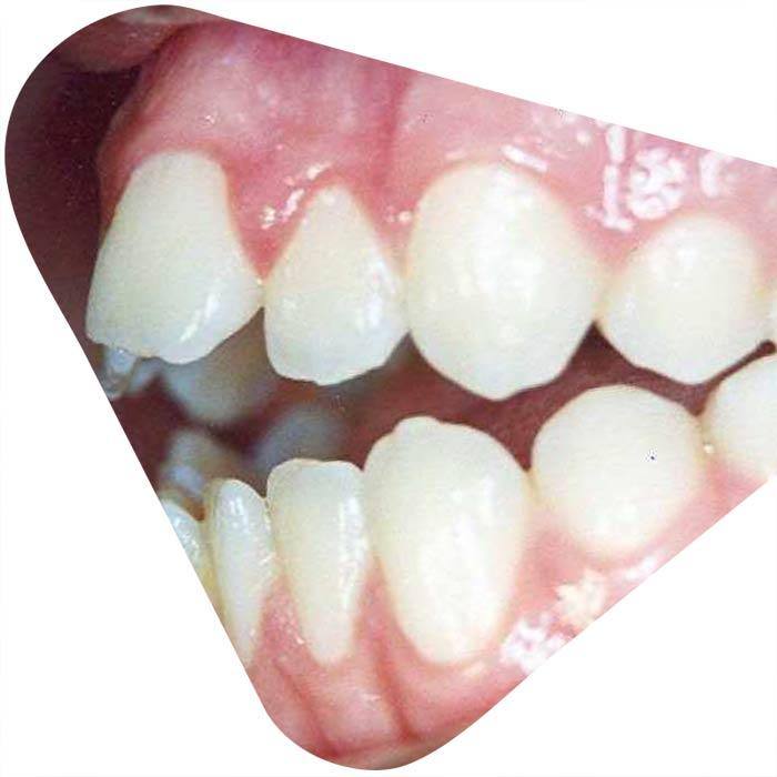 logopedie en tandheelkunde